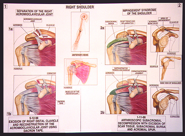 Cv Joint Cost >> Howell MediGraphics: Medical Illustration of the Month